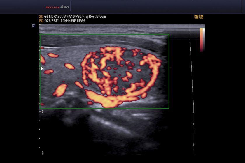 Samsung Accuvix A30 Ultrasound Machine