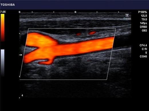 Canon Viamo Ultrasound Machine