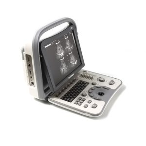 SonoScape A6 Portable Ultrasound Machine