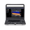 SonoScape E2 Ultrasound Machine