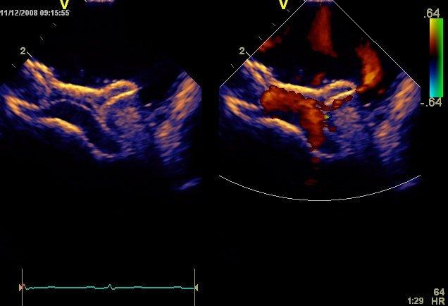 GE Vivid q Ultrasound Machine